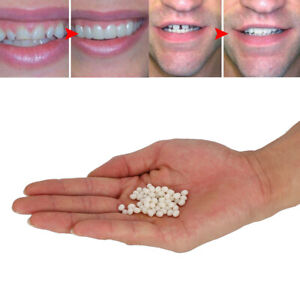 100g Zahn Reparatur Zahnersatz  Glue Fester Kleber Lücken Füllen Temporäre★