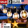 Outdoor String Lights Patio Yard Garden Lighting Waterproof 25 G40 Globe Bulbs