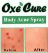 1x50ML OF ACNE BODY SPRAY TREATMENT OXE CURE FIGHTS BODY BUTT BACK ACNE SPOTS