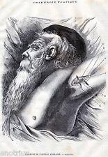 Chirurgia Vascolare: LEGATURA DELL'ARTERIA ASCELLARE.Medicina.Stampa Antica.1881