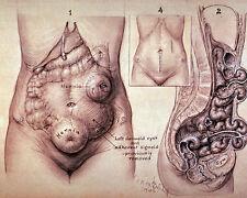 Vintage Medical Anatomy Surgery Illustration Sick Rose Real Canvas Art Print New