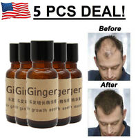 5 X Hair Growth Essence Oil Loss Treatment Natural Liquid Organic Fast Regrowth