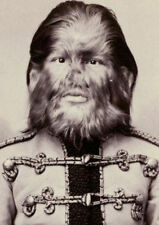 Framed Print - Victorian Era Circus Freaks Human Oddities (Bizarre Pictures Art)