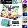 Fashion Hard Shell Case Keyboard Skin Cover For Apple Macbook Air Pro Touch Bar