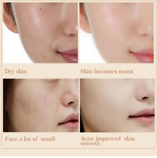 SNAIL FACE CREAM HYALURONIC ACID MOISTURIZER WRINKLE ANTI AGAIN