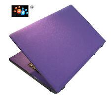 "KH Laptop Carbon Leather Sticker Skin Cover for Acer Aspire VX5 591 591G 15.6"""