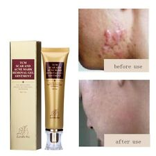 Removal Cream Spots Scar Stretch Marks Treatment Effective Face Skin Care 30g
