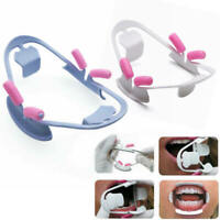 Dental Orthodontic Mouth Prop Opener Intraoral Cheek Lip Retractor Kid Adult 3D