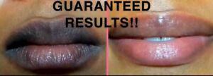 EXTREME pink lip LIGHTENING balm and scrub solution DEAL, dark lip corrector