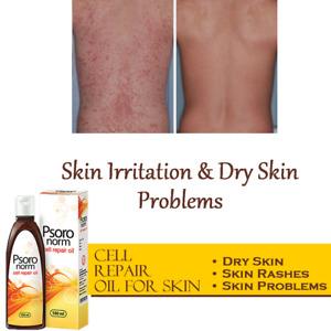 Dry Skin Moisturiser Oil 100ml - Rejuvenates & Nourishes Your Scaly & Dry Skin