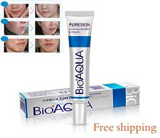BIOAQUA Face Skin Care Acne Removal Cream Spots Scar Blemish Marks Authentic