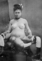Antique Medical Oddity Nude Photo 506 Oddleys Strange & Bizarre