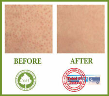 BEST TREATMENT TO CURE KERATOSIS PILARIS / KP / CHICKEN SKIN (Tried & Tested)