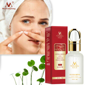 10ML Practical Face Skin Care Acne Treatment Removal Cream Spots Scar Blemish