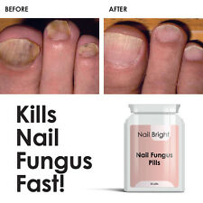 Nail Bright Pills - Nail Fungal Cure Stop Fungus Dry Brittle Crumbing Nails