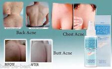 Body Acne Treatment Clarify Spray MISTINE Pimple Blackhead Butt Chest Back clear