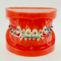 Dental Study Student Teeth Model Red Metal Bracket Arch Wire Chain Orthodontic