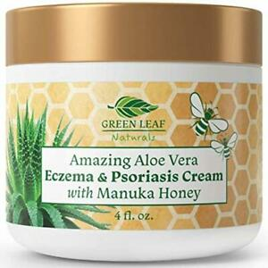 Amazing Aloe Vera Eczema and Psoriasis Cream with Manuka Honey by Green Leaf Nat