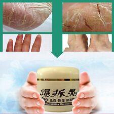 Crack Heel Cream Hand Foot Skin Moisture Dry Repair Foot Massage Smooth Cream