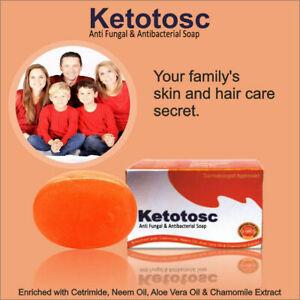 Antifungal Ketotosc Soap with KetoconazoIe for Pityriasis / Tinea Versicolor UK