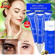 Powerful Effective Whitening Cream Melasma Acne Dark Spots Freckles Pigment 60g