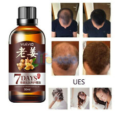 7 Days Hair Fast Regrowth Ginger Essense Oil Serum HAIR LOSS TREATMENT Promoter