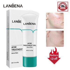 LANBENA Acne Treatment Cream Remove Blackheads Pimples Gel Face Clean Effective