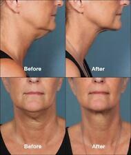 Neck Lift Massage LED Anti Wrinkle Double Chin Slim Toning Firming Skin Machine