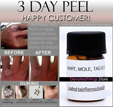 BEST 3 DAY PEEL DEEPEST GENTLE ACID for HPV WARTS, SKIN TAGS, MOLES, KELOID SCAR