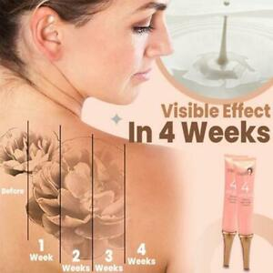 Permanent Tattoo Removal Cream Painless Tattoo Cleansing Fast