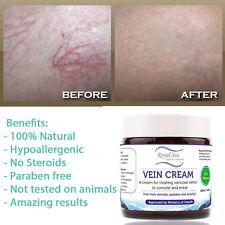 Natural Varices Veins Legs Treatment Gel Cream, Phlebitis Thrombophlebitis Clear
