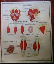 Affiche scolaire ROSSIGNOL anatomie  N°13 cyphose et scoliose  N°14 les muscles