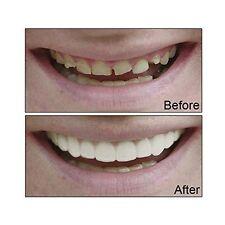 Cosmetic Teeth Snap On Instant Smile Secure Veneers False Dental Natural Large