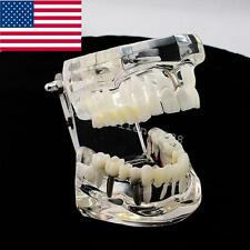 USA Fast!Dental Implant Disease Teeth Model with Restoration & Bridge Tooth Care