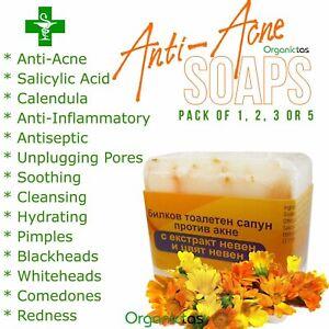 Anti-Acne Soap with Salicylic Acid & Calendula Acne, Blackheads, Pimples, etc.