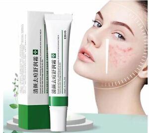 Effective Acne Removal Treatment Spot Oil Control Pores Whitening SkinCare Cream