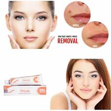 THUJA HOMEOPATHIC Herbal CREAM wart remover mole skin tag removal