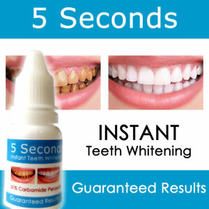 Carbamide Peroxide 30% Instant Teeth Whitening Kit Best Gel Whitener Bleach Kit