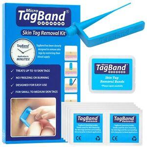 Micro TagBand Skin Tag Remover Kit
