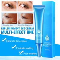 Eye Cream Gel For Dark Circles Puffiness Wrinkles Most Effective Anti-Aging 30g