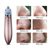 Hot Electric Facial Cleaner Blackhead Vacum Meter Nose Pore Acne Suction Remover