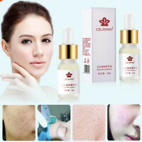 Face Makeup Shrinking Essence Oil Long-lasting Moisturizing Pore Fine Essence