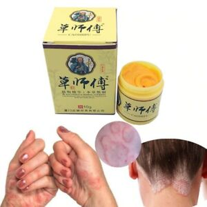 Psoriasis Eczma Cream Works Perfect For All Kinds Of Skin Problems Patch Body