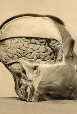 Antique Medical Brain Specimen Photo Bizarre Odd Freaky Strange
