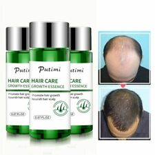 Fast Hair Growth Essence oil Hair Loss Treatment Hairs Care women men Powerful