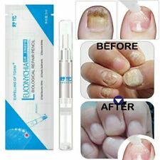 Nail Fungal Treatment Pen Anti Fungus Infection Biological Repairs Care