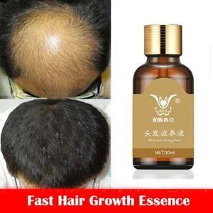 Fast hair growth Natural Essence shampoo Hair Loss treatment ReGrowth men women