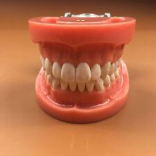 1 Piece Wax Fixed Standard Dental Teeth Model 28ocs Hard gum A6