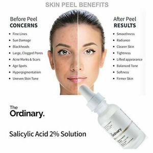 The Ordinary Salicylic Acid 2% Solution 30ml 2% Salicylic Acid Skin Peel Exfolia