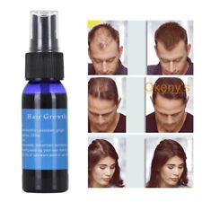 30 ml Natural Ginger Hair Growth Essence Regrowth Anti Hair Loss Treatment Spray